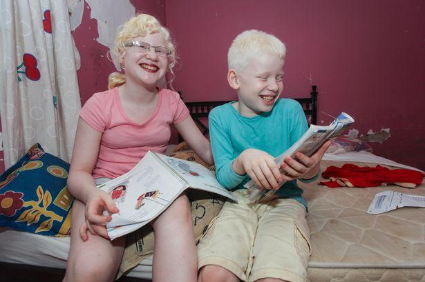 Albino-kids (2)