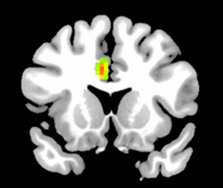 This is what your brain looks like if you've never been in love, according to scientists (Pic: Frontier for Human Neurosciences)