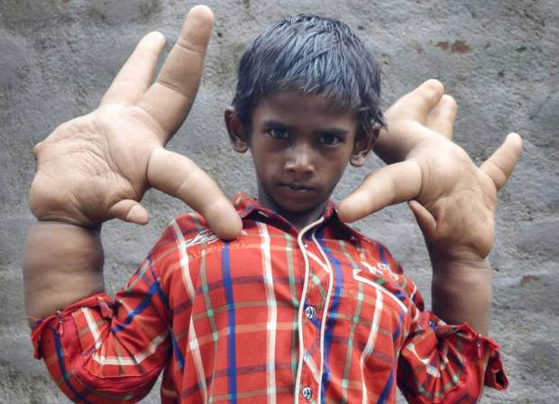 Meet the child who has the biggest hands in the world - They are so big! (Photos) theinfong.com
