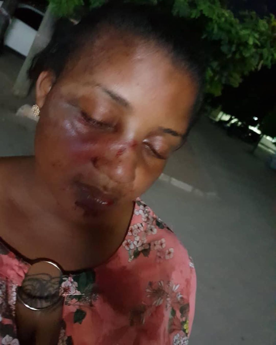 actress-zena-yusuf-with-battered-face