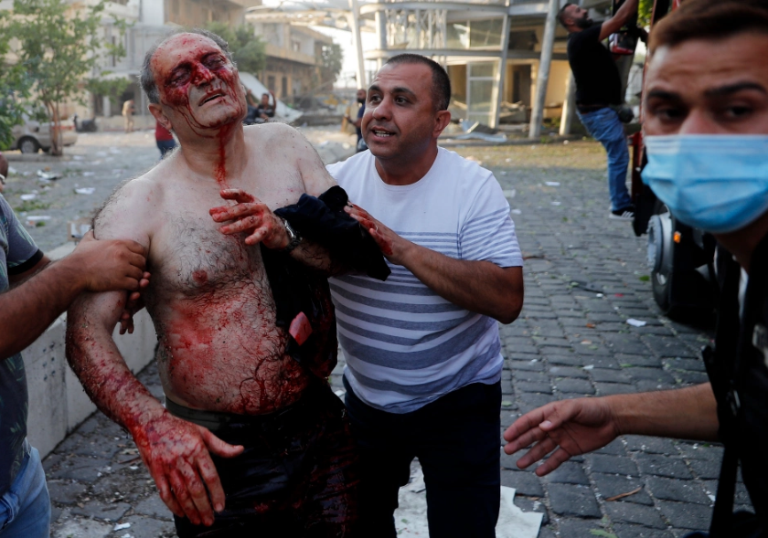 beirut-explosion-injured-victims