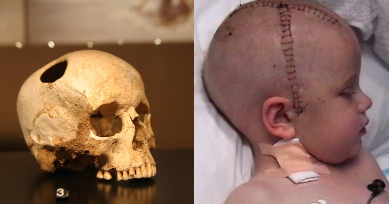 types of surgeries you won't believe exist