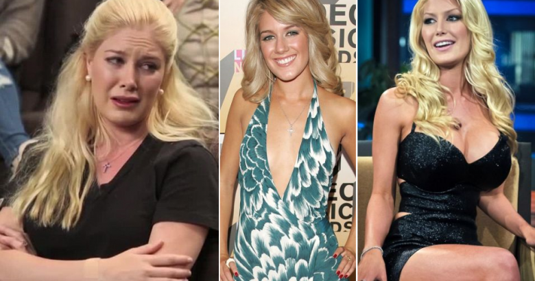 Celebs who ruined their careers with plastic surgeries