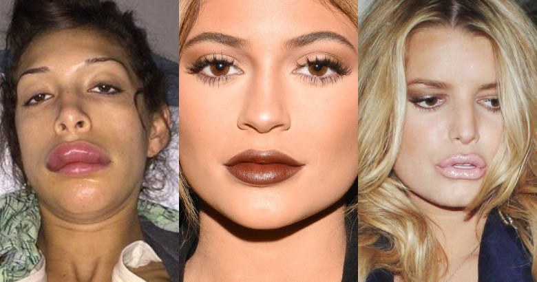 Celebs who have done their lips after Kylie Jenner did