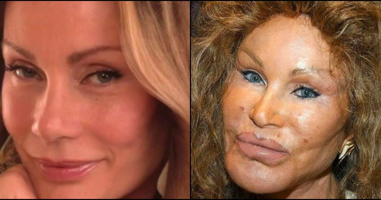 celebs who ruined their own looks with plastic surgeries