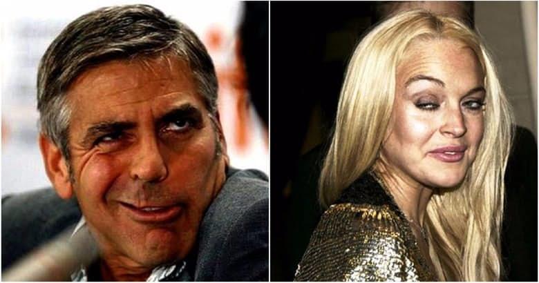 worst-photos-of-celebrities