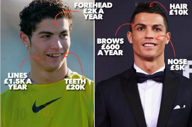 footballers-that-have-done-plastic-surgery