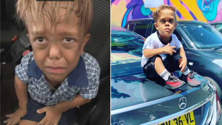 ICYMI: Bullied 9-yr-old boy with dwarfism, Quaden Bayles lied, he's 18 and a rich celebrity in Australia