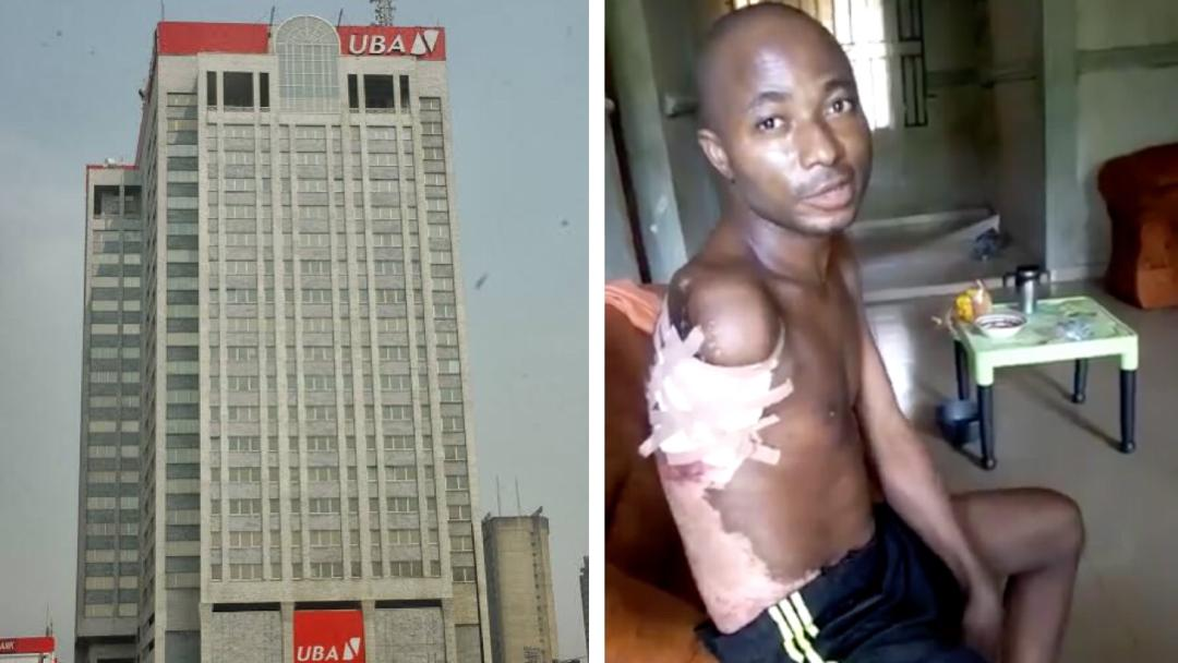 The man should sue them -Nigerians blast UBA for reportedly donating 'just' N1m to painter who lost his arm while working for them