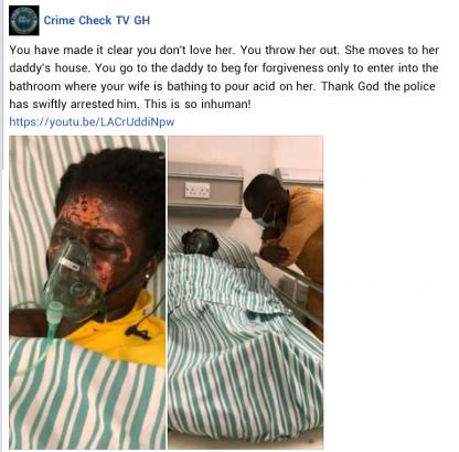 woman-bathed-acid