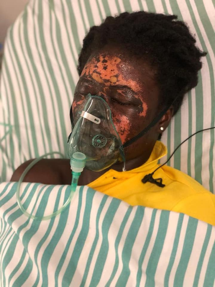 woman-bathed-in-acid-hospital-bed