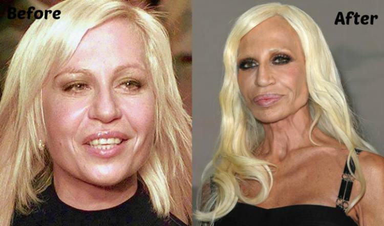 1Donatella-Versace-Plastic-Surgery3