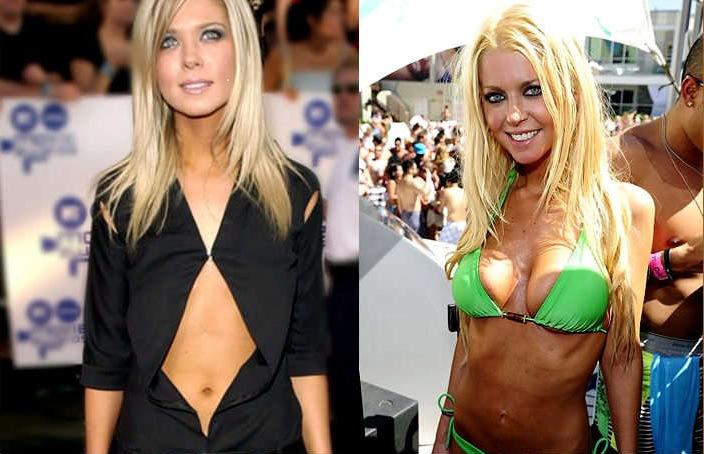 3-Tara-Reid-Plastic-Surgery1